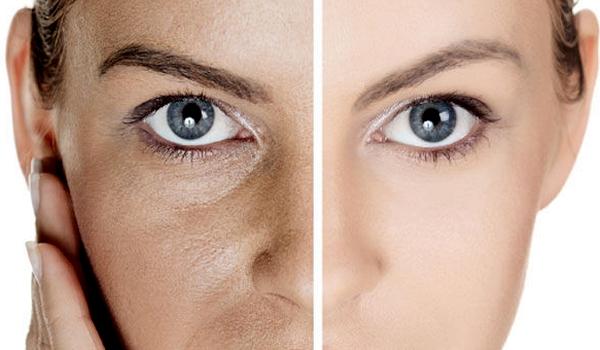 Как сделать так чтобы кожа лица была менее жирной 474