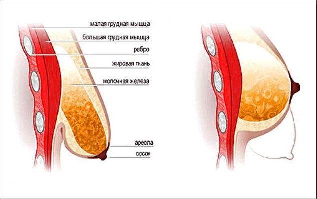 Как увеличить грудные железы домашних условиях за 1 день 162